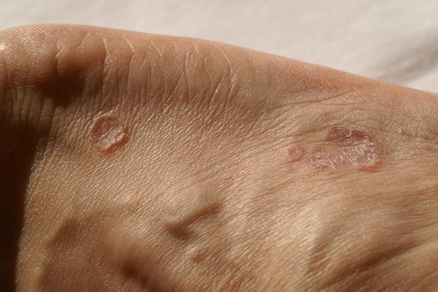 Dr. Kása Margit: Hipnózis a bőrgyógyászatban