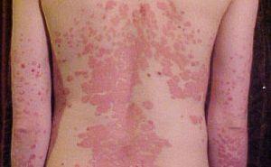 házi kvarclámpák pikkelysömör kezelésére vörös foltok az arcon az orrtól