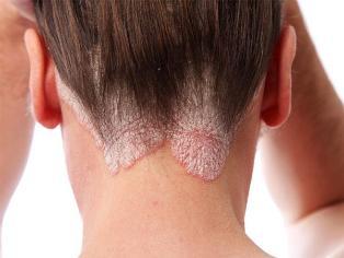 hogyan lehet megszabadulni a pikkelysmr fejn psoriasis gomba vörös foltok az arcon