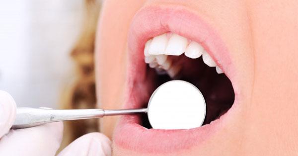 a szájnyálkahártya pikkelysömörének kezelése a bőrön rózsaszín foltok piros pöttyökkel