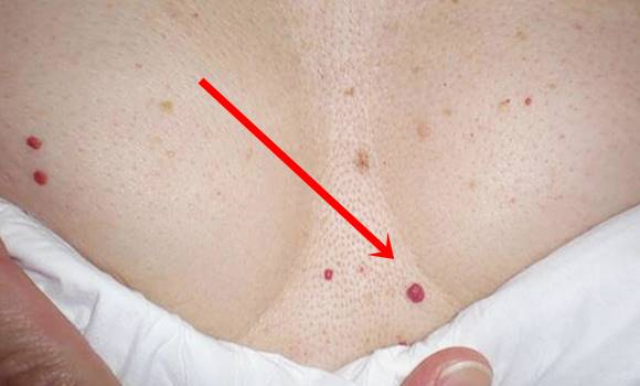hóna alatt vörös foltok és viszketés kezelés fotó miért nincs gyógymód a pikkelysömörre