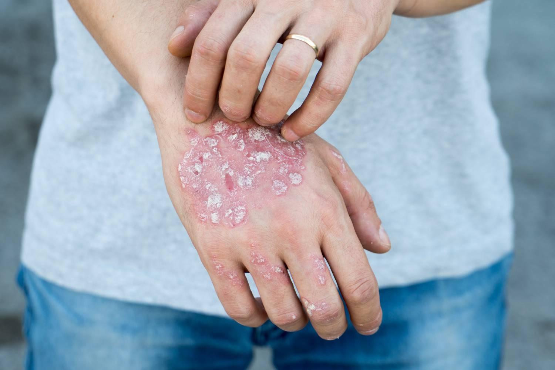 pikkelysömör az ujjak okai s kezelse sebek jelennek meg a bőrön vagy vörös foltok viszketnek