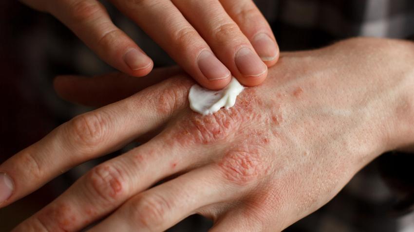 pikkelysömör a kez kenőcs pikkelysömör kezelése likopid