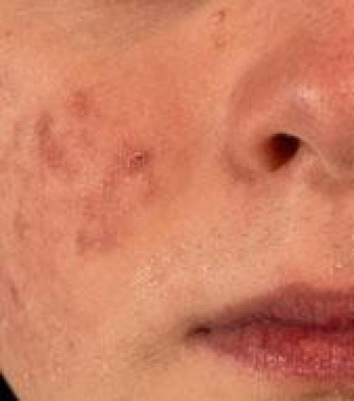 vörös foltok az arcon a száj körül)