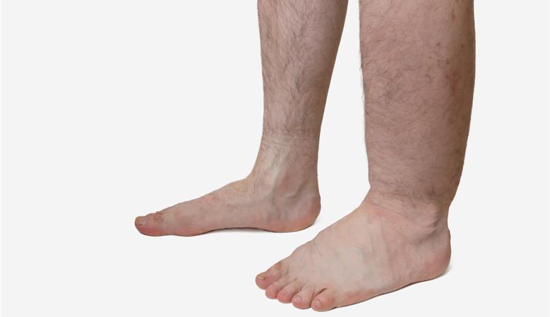 a lába duzzadt és vörös folt
