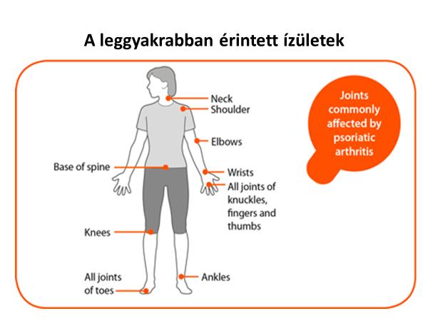 hogyan kezeljük az akupresszúrás pikkelysömör arthritis psoriatica labor