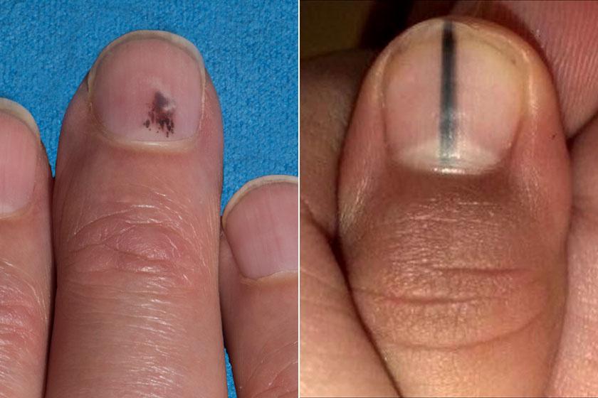 vörös foltok a hüvelykujj közelében lévő kézen