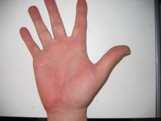 vörös folt a hüvelykujj kezén