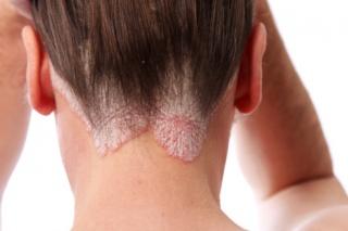 testén vörös foltok szúrós hő fotó hogyan kell kezelni vörös foltok az arcán fázik