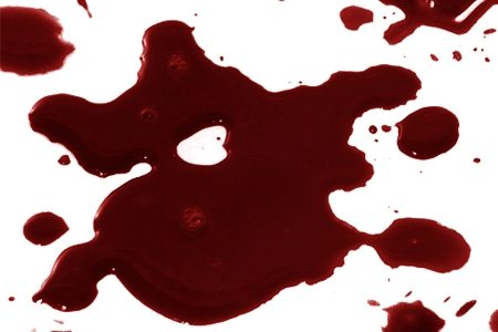 egy álomban vörös foltok vannak a kezeken érdes vörös foltok a kezeken