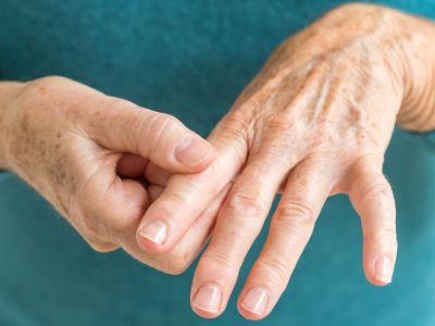 vörös foltok a karokon és a lábakon reumás ízületi gyulladással ekcma pikkelysömör gyógyszerek