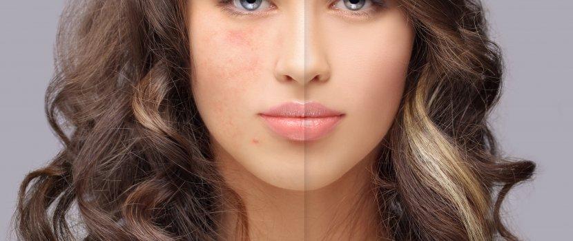 az arcon megjelenő foltok miatt vörösek