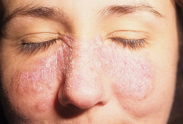 vörös foltok jelentek meg az arcon; hámozzon le, mint kezelni