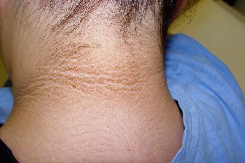 viszkető fej és nyak vörös foltok a nyakon)
