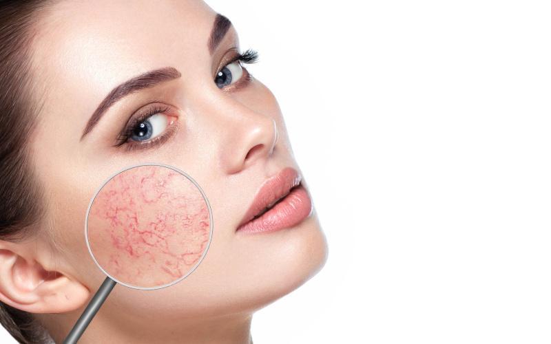 vörös foltok az arcon és hámlasztó kezelés
