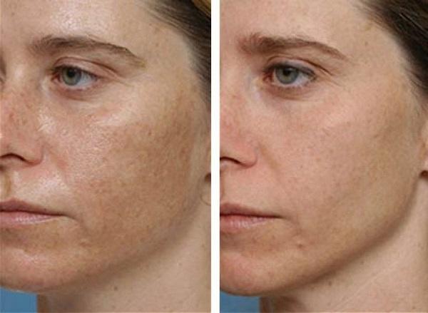 hogyan lehet gyorsan eltávolítani a vörös foltokat az arcon pikkelysömör lágyéki kezelés
