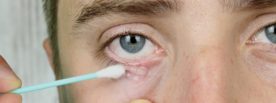 pikkelysömör arcplakk kezelése