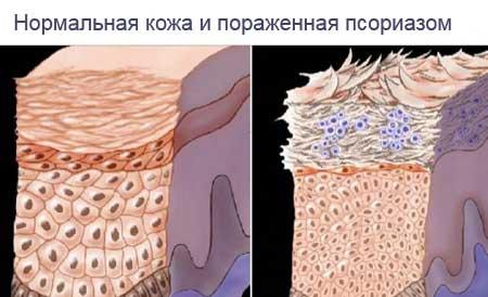 aekol pikkelysömör kezelésére)
