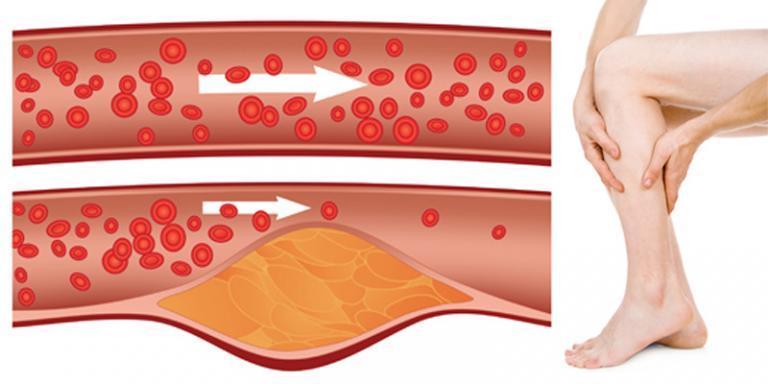 hemlock kezelés pikkelysömörhöz a duzzadt lábak és a lábakon vörös foltok égnek