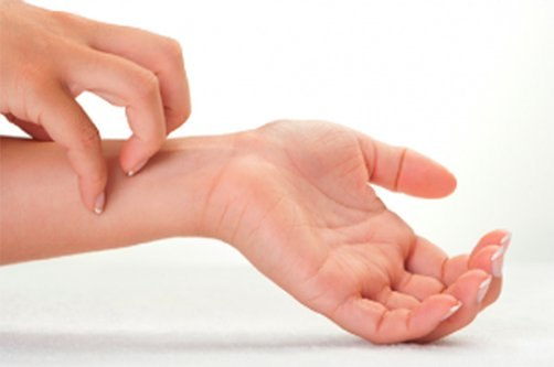 kézbőr psoriasis kezelése
