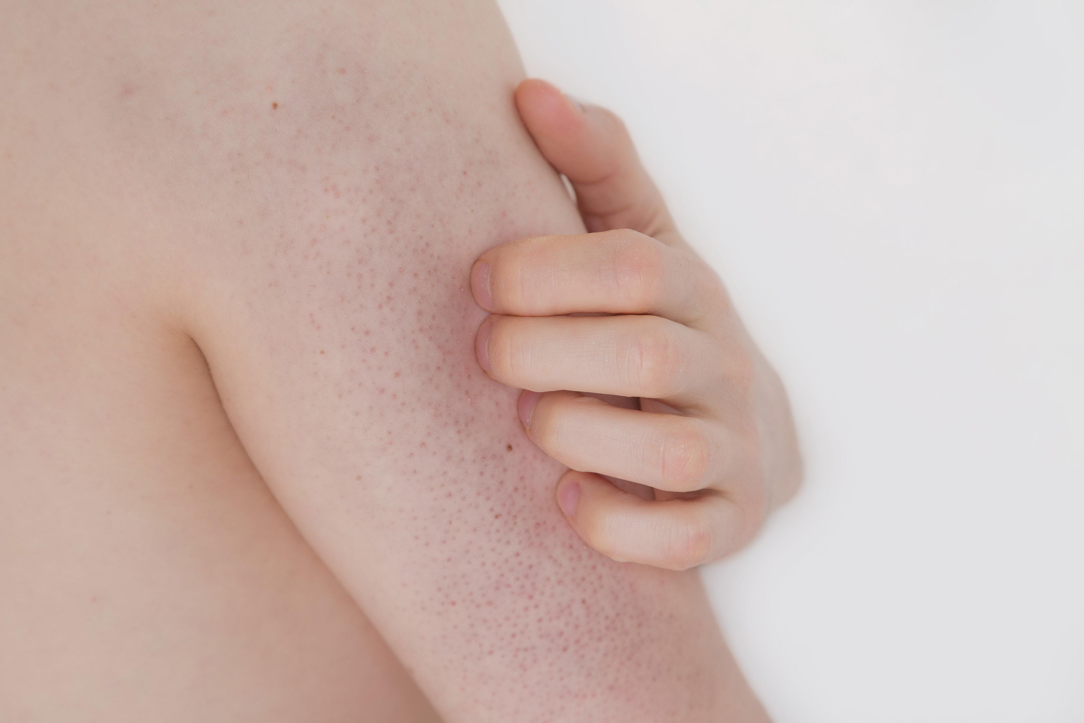 vörös folt a karján apró pattanásokkal