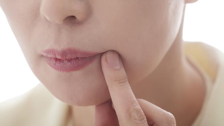 Genitális herpesz, nemi herpesz kezelése - Dr Harmos Ferenc