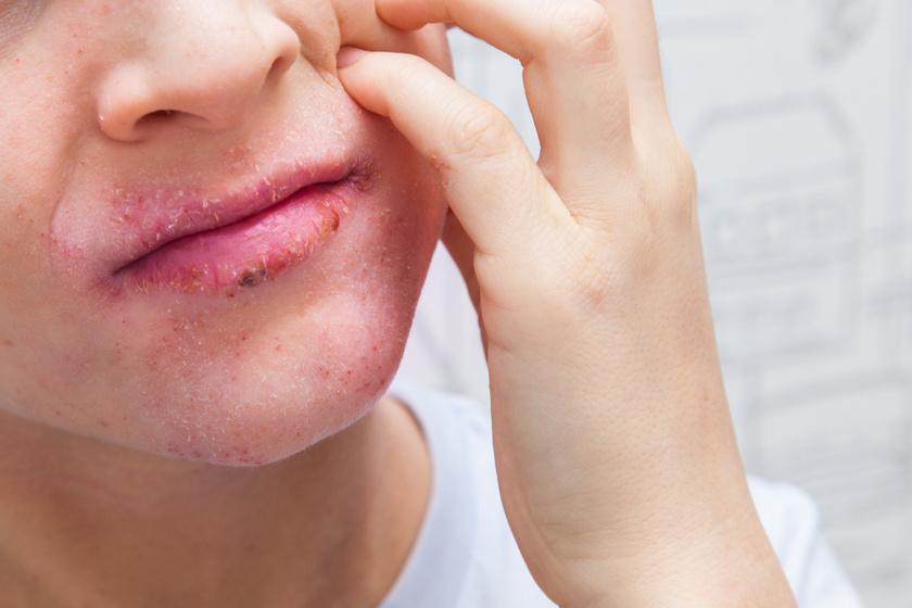 pikkelysömör a szájban hogyan kell kezelni
