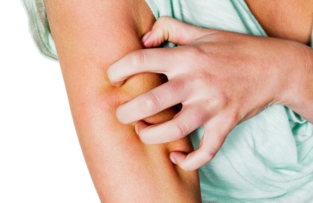 pikkelysömör kezelésének szakemberei vörös foltok a mell bőrén