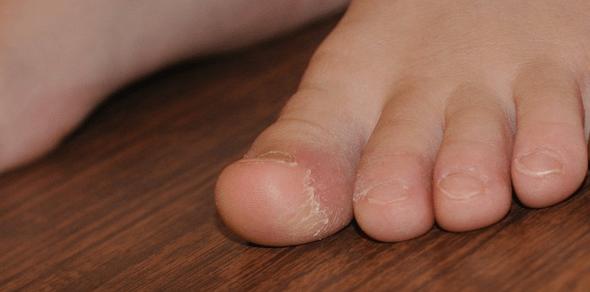 vörös durva folt a lábán)