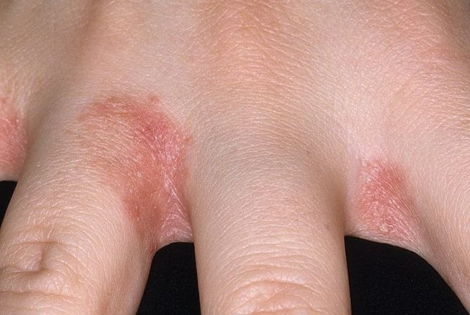 kézbőr psoriasis kezelése)