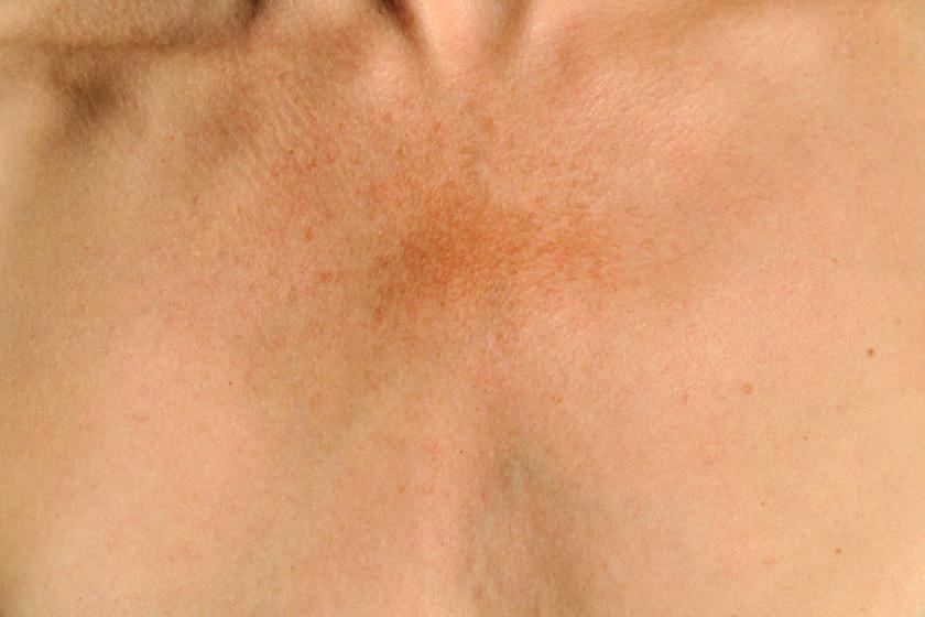 vörös napfoltok a bőrön hogyan kell kezelni gyógyítja a pikkelysömör aktív szénnel