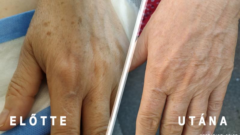 streptoderma a kezelés után vörös foltok maradtak