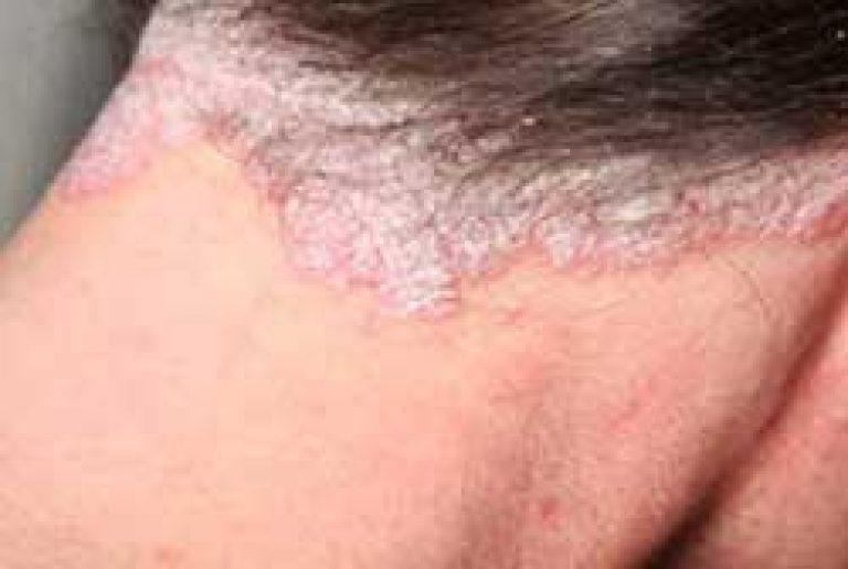 hogyan lehet eltávolítani a pikkelysömör fején lévő pikkelysmr hogyan kezelik pikkelysömör nyugaton