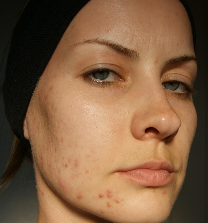 hogyan lehet megszabadulni az arc vörös foltjaitól a pattanásoktól)