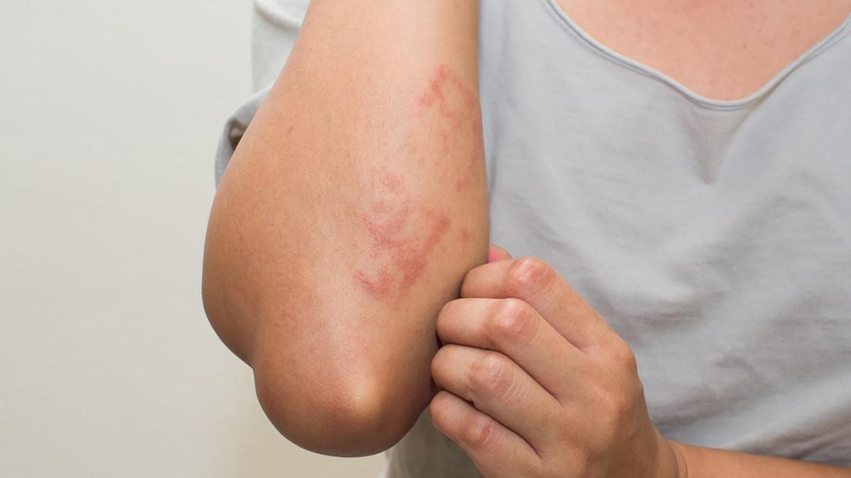 sebek jelennek meg a bőrön vagy vörös foltok viszketnek)