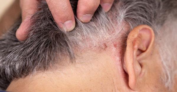 pikkelysömör kezelése a fej kenőcsökön)