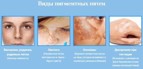 gygynvnyek pikkelysömör dermatitis fotó piros foltok a lábán
