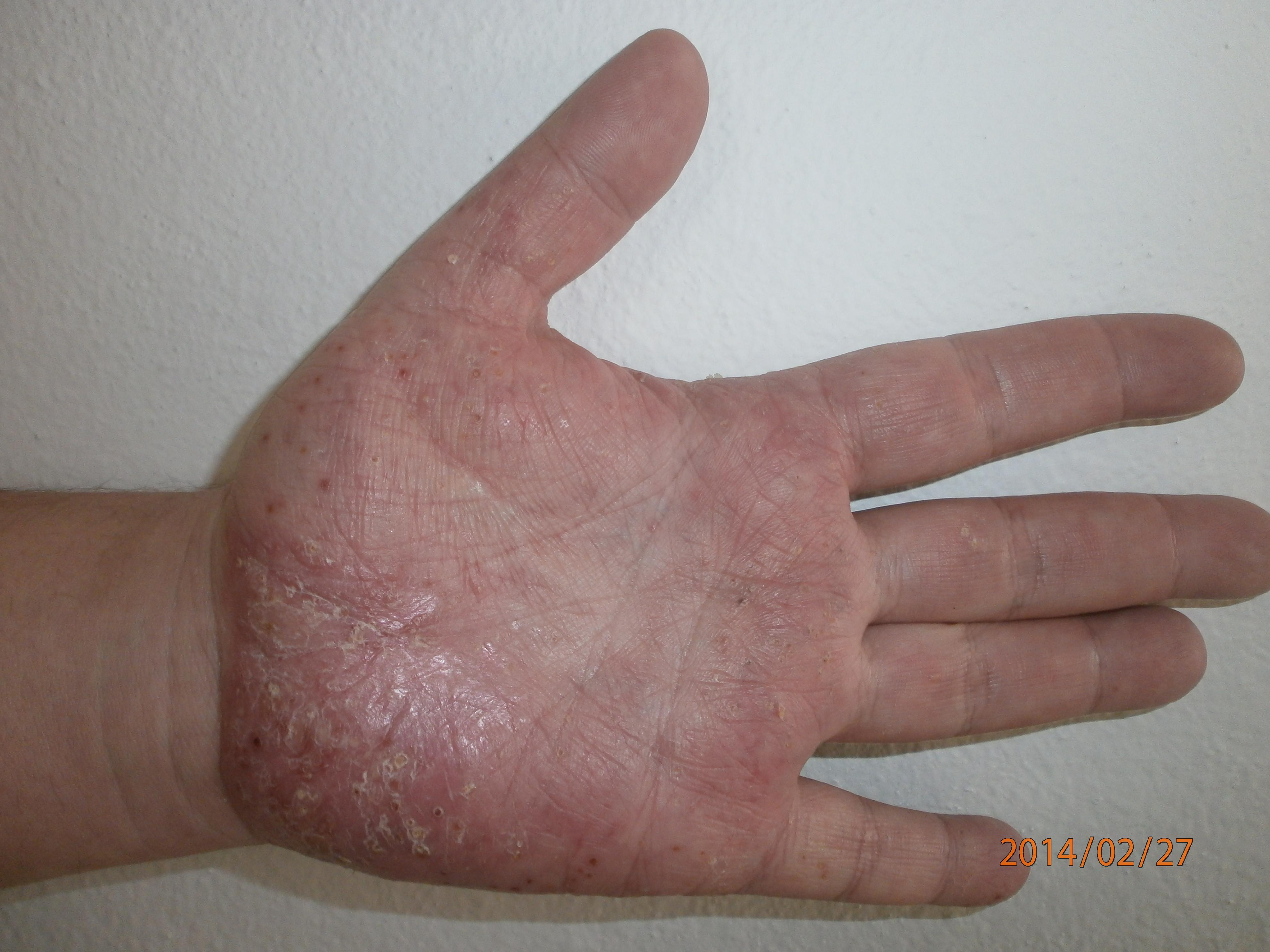 a tenyér pikkelysömörének kezelése)