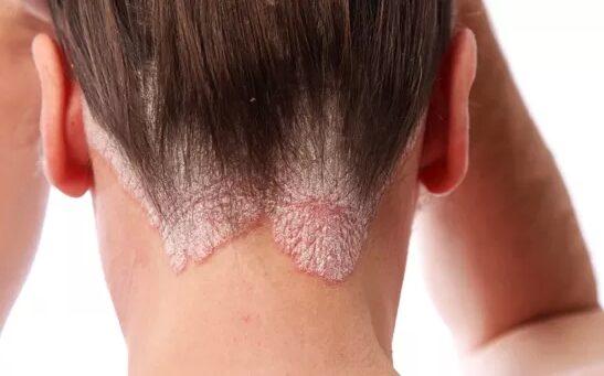 segítsen a pikkelysömör gyógyításában a fején
