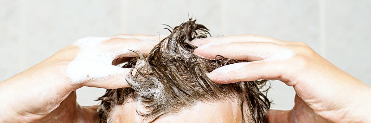 a kezelés kezdeti szakaszának fej fotója pikkelysömör