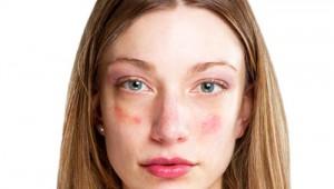 vörös pikkelyes foltok jelentek meg az arcon mi ez