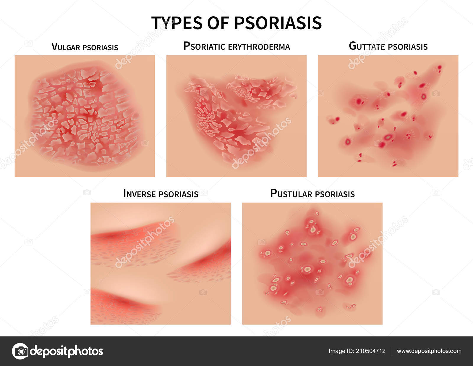 teljes psoriasis kezelsi rend)
