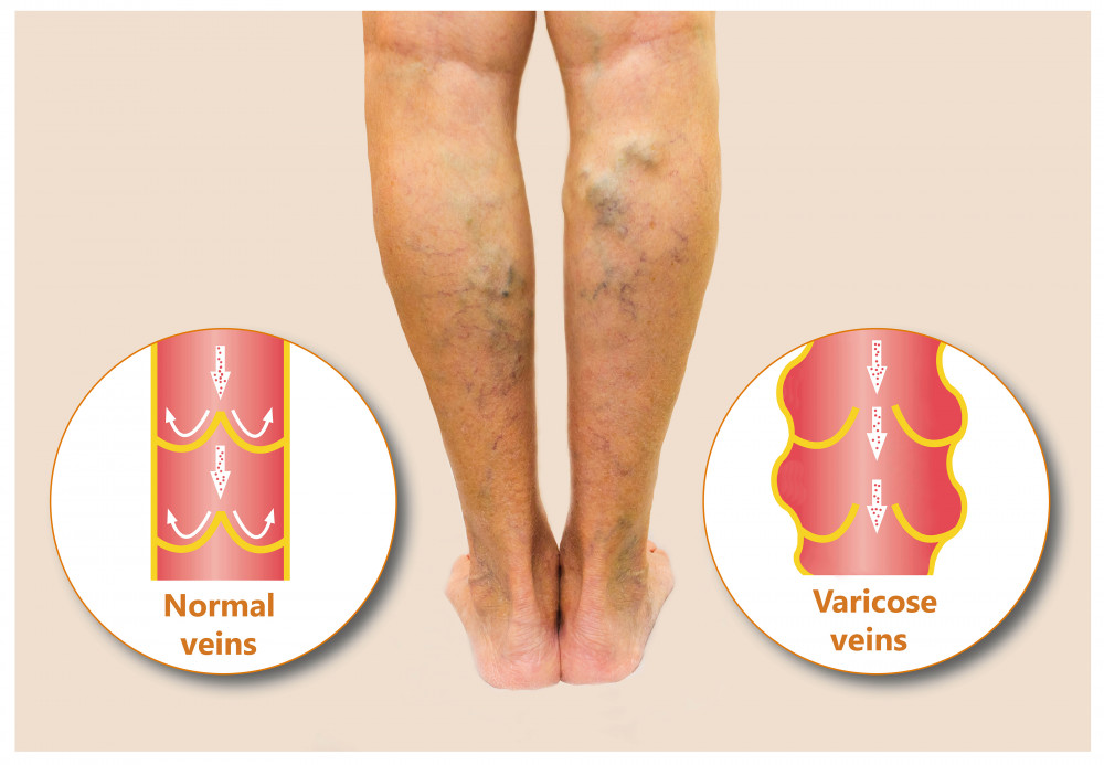 olvadt vzzel pikkelysömör kezelésére a láb duzzanata és egy piros nagy folt