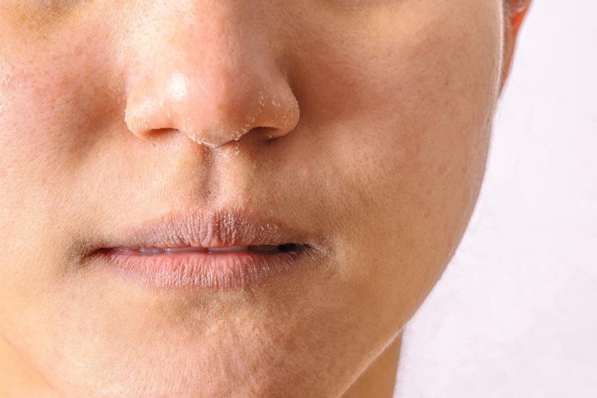 hogyan lehet eltávolítani az orr körüli vörös foltokat)