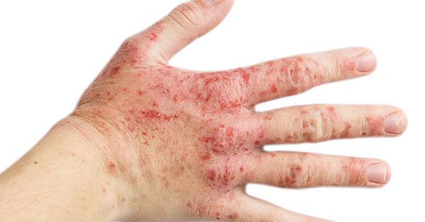 A macskák leggyakoribb szőr- és bőrbetegségei