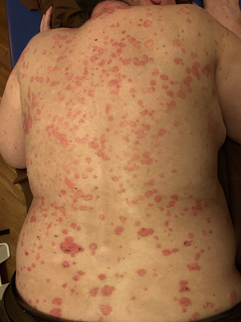 Bőrbetegségek - Terápia Shop - Ízületi fájdalom? Hátfájás? F