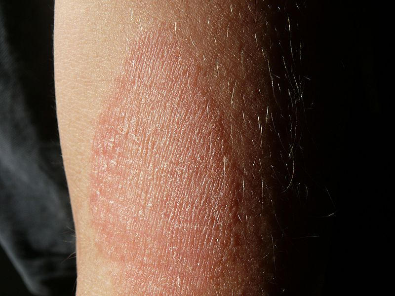 vörös foltok a jobb karon és a lábon