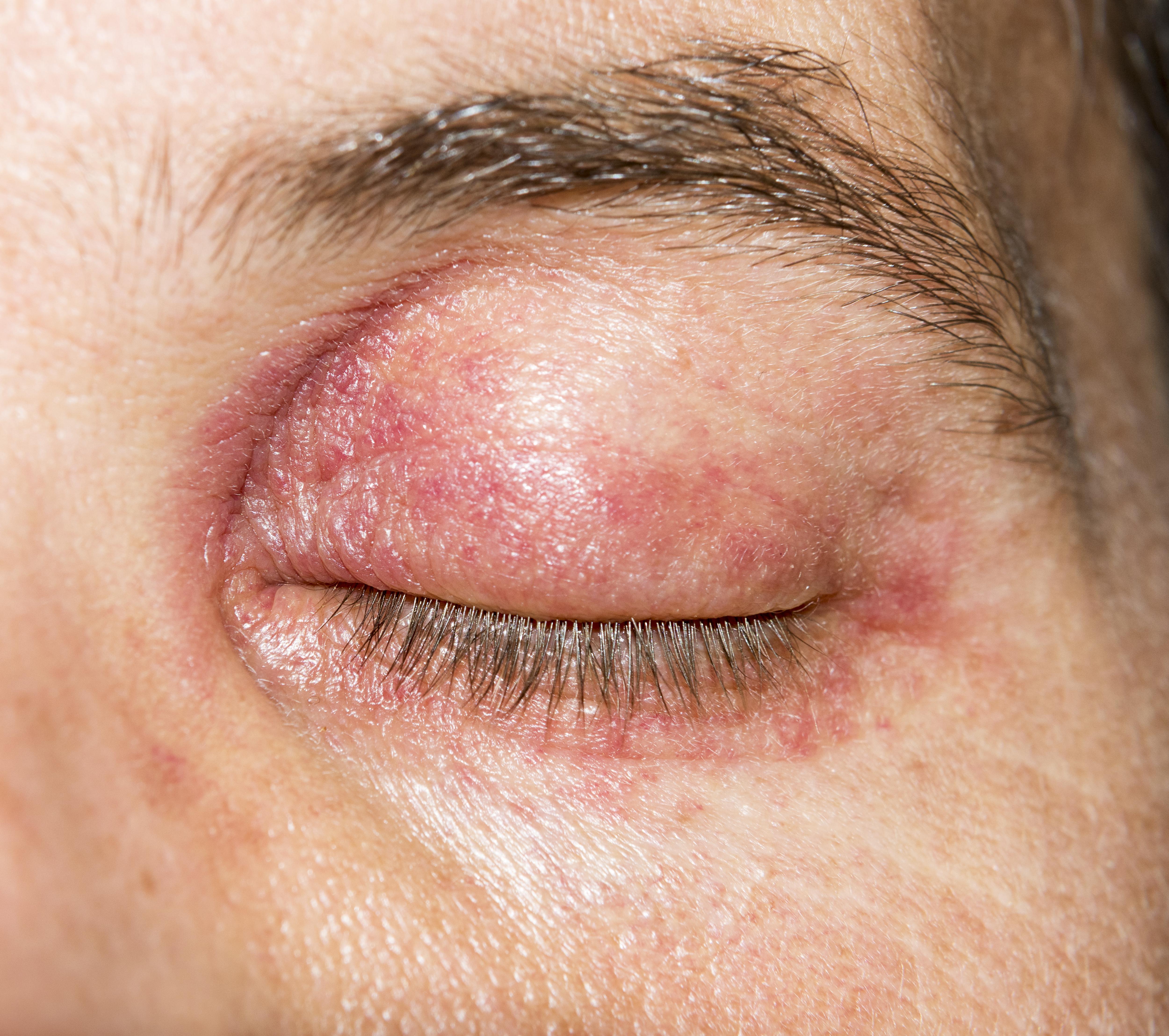 vörös ovális folt az arcon
