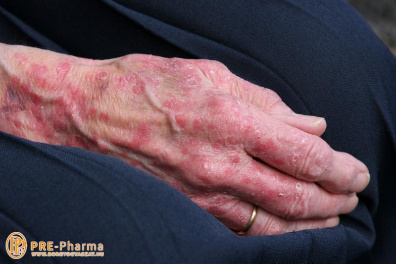 vörös foltok emelkedtek az arcon a bőrön rózsaszín foltok piros pöttyökkel