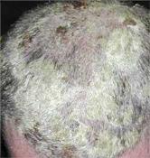 hogyan lehet meggyógyítani a fejbőr pikkelysömörét?